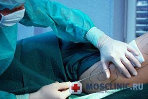 пластическая операция, липосакция