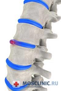 Боль в спине. Почему болит спина?