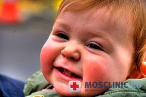 Диатез не считается каким-либо заболеванием, но является отправной точкой для развития других проблем со здоровьем, а также некоторых хронических заболеваний. Итак, диатез у детей. Первый признак того, что в организме малыша что-то не так - наличие красных щечек у малыша. Диатез у новорожденных возможен из-за того, что ребенок неправильно питался либо в утробе матери, либо уже после рождения.  Причины диатеза Итак, из-за чего может появиться диатез у новорожденных? Вот  наиболее распространенные факторы возникновения диатеза у детей: токсикоз во время беременности; неправильное питание при беременности; употребление  продуктов, вызывающие аллергические реакции (цитрусовые, красная икра, мед); злоупотребление лекарственными препаратами; наследственность; плохой экологии. Следует запомнить одно: правильное питание – фундамент здоровья Вашего малыша. Разновидности диатеза Диатез у детей бывает нескольких разновидностей и может проявиться кожными заболеваниями, проблемами с лимфами и нервными расстройствами. Итак, разновидности диатеза у детей: - Лимфатико-гипопластический диатез у детей. Симптомы: увеличение лимфатических узлов, нарушение работы эндокринной системы, регулярные простуды, аллергия. Развивается после инфекционных болезней. – Нервно-артритический. Возникает в результате неправильного обмена веществ. Является наследственным заболеванием. Симптомы: подагра, ожирение, артрит, сахарный диабет. – Экссудативно-катаральный дерматит (ЭКД). Возникает в самом раннем возрасте. Имеет следующие симптомы: снижение иммунитета, увеличение слизистых оболочек, , воспалительные порцессы.  Такие разновидности диатеза требуют незамедлительного лечения. В случае если Вы запустите диатез у новорожденного, то это может стать причиной возникновения экземы, дерматита или нейродермита. Лечение диатеза Лечение диатеза у детей сводится к нескольким простым приемам. Но гораздо проще не допускать возникновения диатеза у детей вовсе. Добиться этого можно с помощью специальных диет во вре