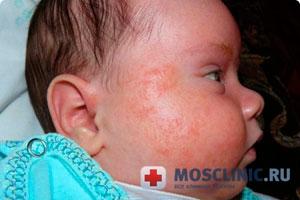 Сыпь новорожденных