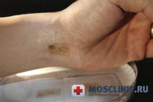 Электронная татуировка оценит здоровье человека