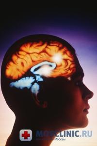 Инсульт – самый распространенный недуг в мире